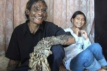 Вирус превратил индонезийца в дерево